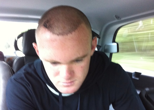 World News Blogspot Rooney Shows Off His Hair Transplant